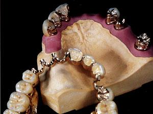 A. Gilienės dantų protezų gamybos įmonė