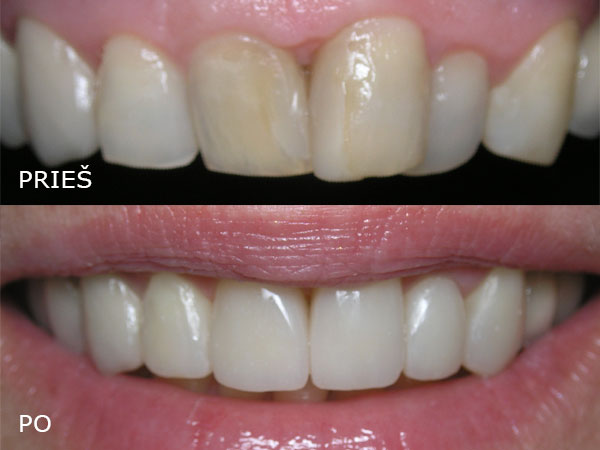 """Estetinės odontologijos klinika UAB """"Studio Dentis"""""""