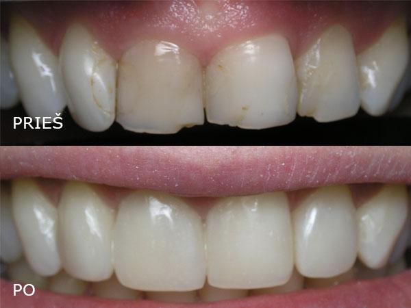 """Estetinės odontologijos klinika, UAB """"Studio Dentis"""""""