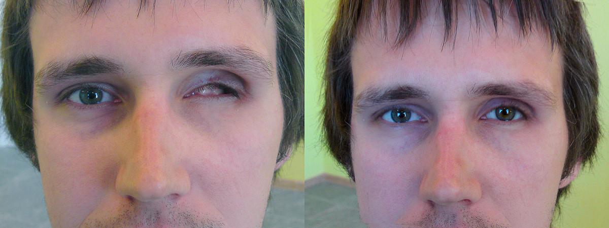 VPL akių protezavimo centras, UAB