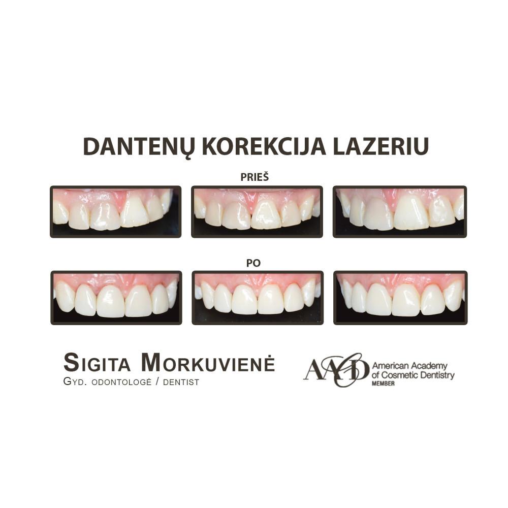 Prodentas, estetinės odontologijos klinika, filialas, UAB