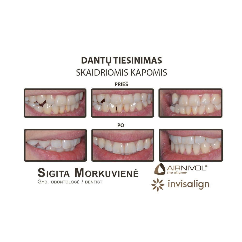 Prodentas, estetinės odontologijos klinika, UAB