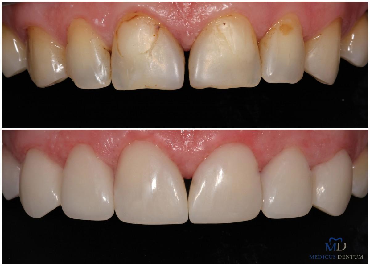 Medicus dentum, estetinės odontologijos klinika, UAB