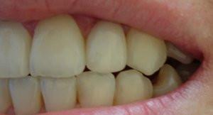 Denticus, UAB