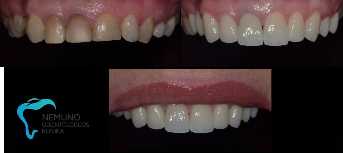 Nemuno odontologijos klinika, UAB