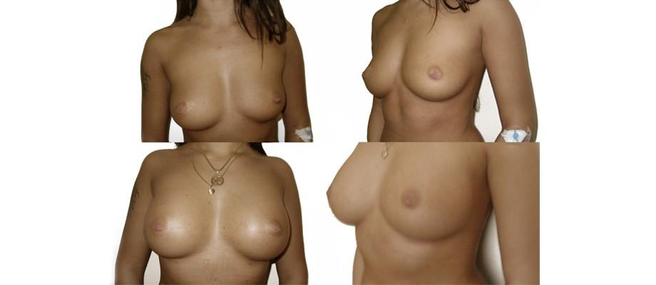 Plastinė estetinė chirurgija