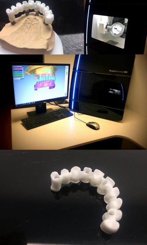Dentonas, UAB
