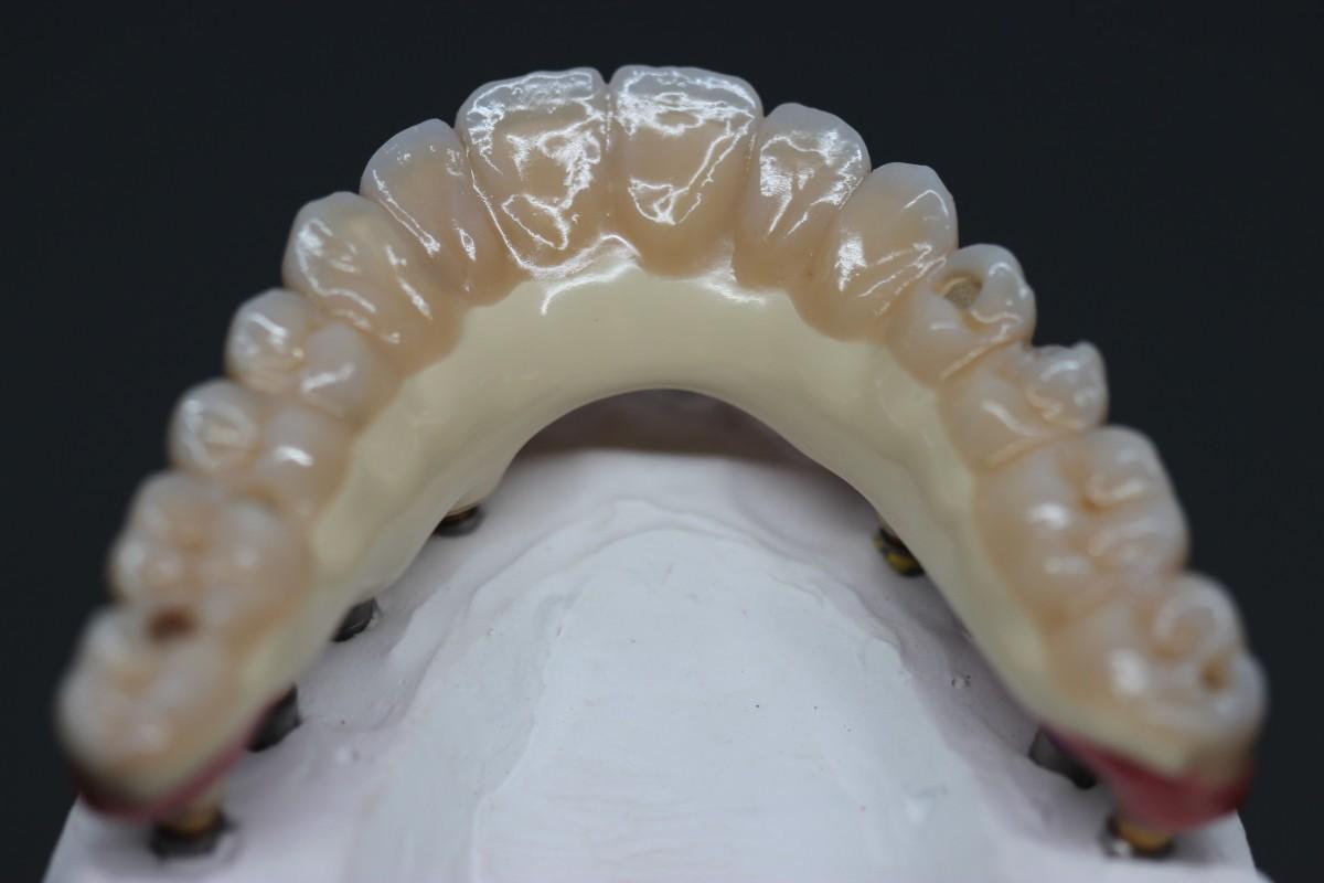 Dantų gaminimo ekspertai, UAB