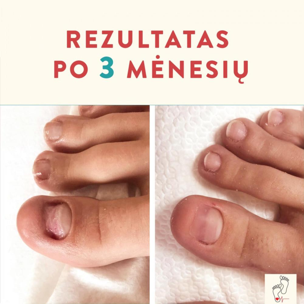 Podologija.lt, pėdų priežiūra