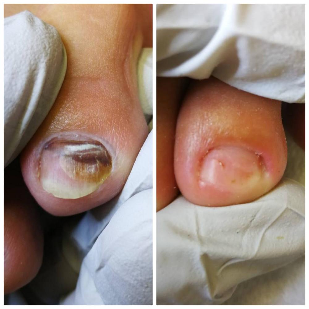 Sveikos pėdos, pėdų priežiūra