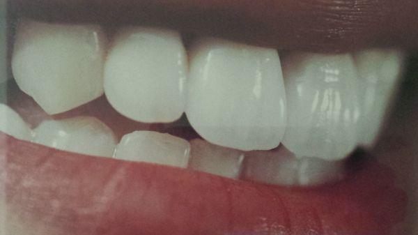 Dantų estetinis protezavimas