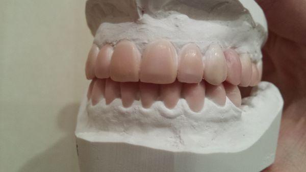 Dantų pavaškavimas ant modelio