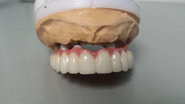 Dantų protezai fiksuoti (cirkonio keramikos)ant implantų