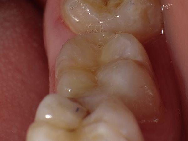 Dantų ėduonies gydymas: