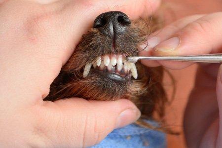 Dantų tvarkymas
