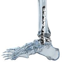 Osteosintezės implantai ir instrumentai