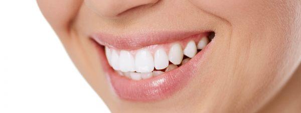 Dantų balinimas, šalinami dantų akmenys.