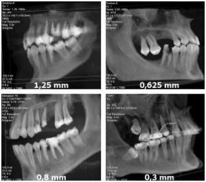 3D kompiuterinė tomografija