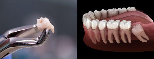 Protinių dantų šalinimas