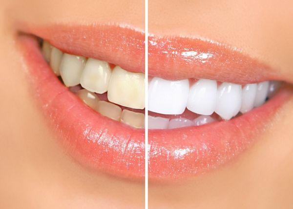 25% nuolaida burnos ertmės higienai ir dantų balinimui
