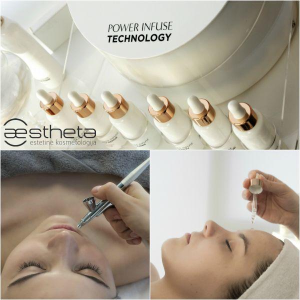 Oxynergy Paris® deguoninė procedūra