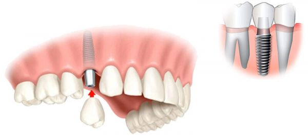Vieno danties implantas