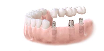 Kelių dantų implantai