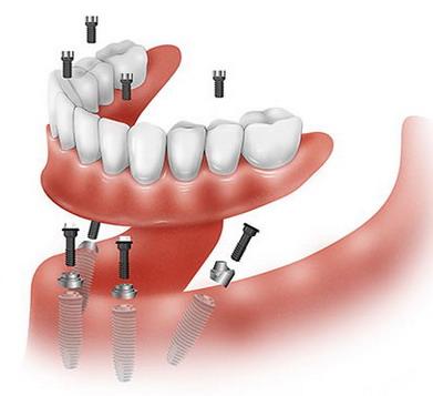 Pilnas žandikaulio implantavimas