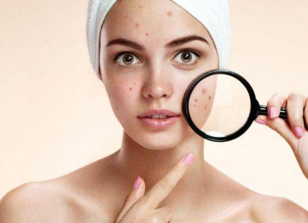 Dermatovenerologija