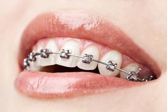Ortodonto paslaugos