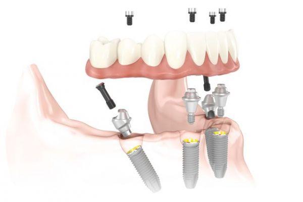 """Viso žandikaulio implantacija pagal """"All-on-4"""" metodiką"""