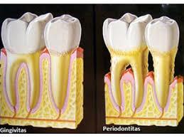 Šaknų kanalų gydymas - pirminė endodontija