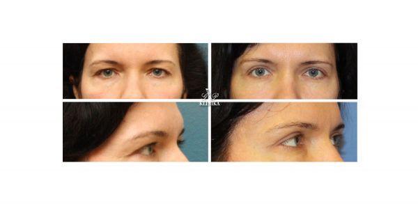 Akių vokų operacija