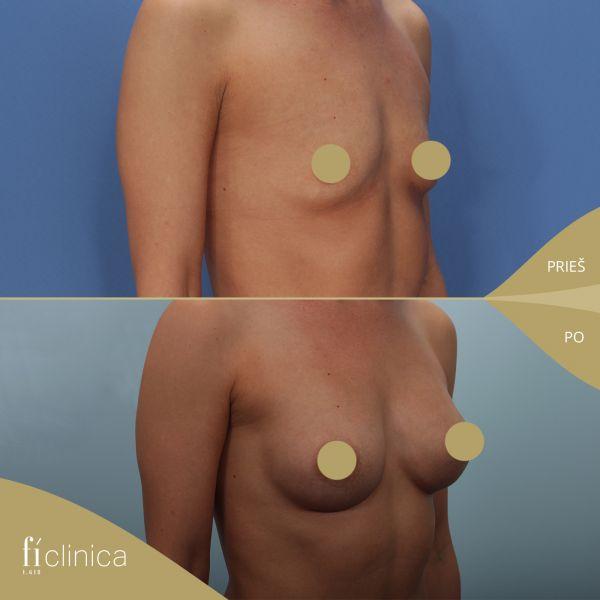 Krūtų didinimas