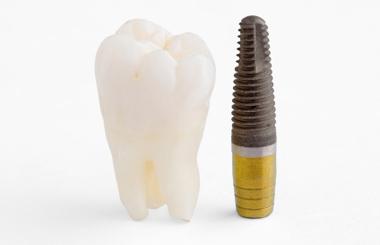 Straumann - šveicariškos kokybės implantai/ Dantų implantavimas