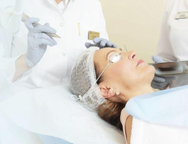 Veido atjauninimo procedūra 4D lazeriu