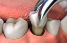 Chirurginis gydymas (danties traukimas)
