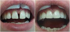 Dantų estetinis plombavimas