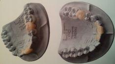 Išimami elastiniai laikini dantų protezai