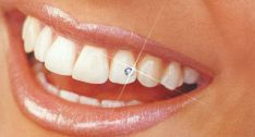 """Dantų papuošalai – """"deimantukai"""" įvairių spalvų, dydžių"""