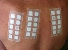 Odos alerginiai mėginiai (lopo mėginiai) bei jų įvertinimas