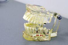 Dantų šaknų kanalų gydymas Dantų plombavimas