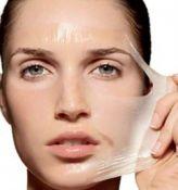 Veido procedūra rūgštimis (cheminis odos šveitimas)