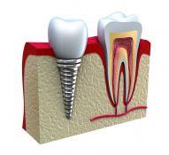 Implantacija