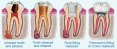 Dantų ir jų šaknų kanalų gydymas