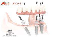 All-on-4 dantų implantai