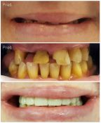 Išimamas dantų protezas/plokštelė ant implantų