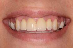 Priekinių dantų protezavimas
