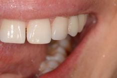 Priekinio danties estetinis plombavimas