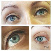 Akių viršutinio voko permanentinis makijažas